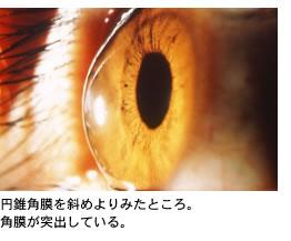 東京歯科大学市川総合病院 眼科/...